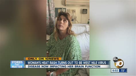 Woman's heat rash turns out to be West Nile virus - YouTube