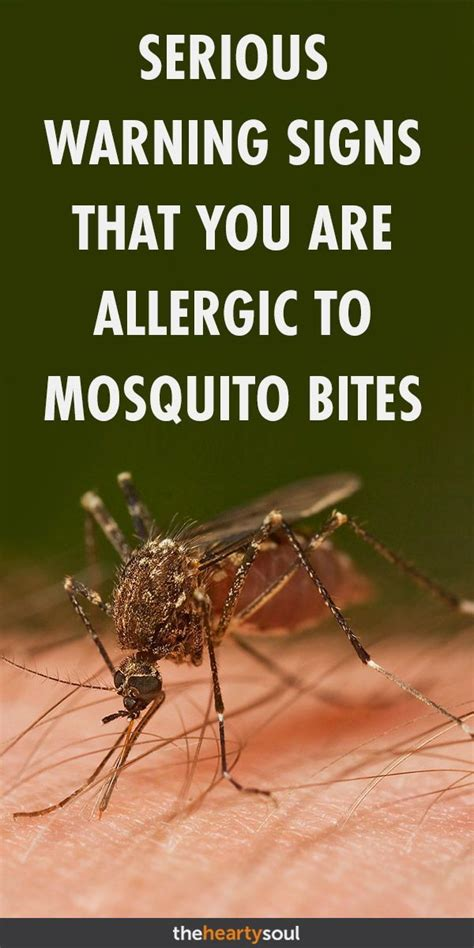 Mosquito Bites Sting and Swell? You Could Have Skeeter